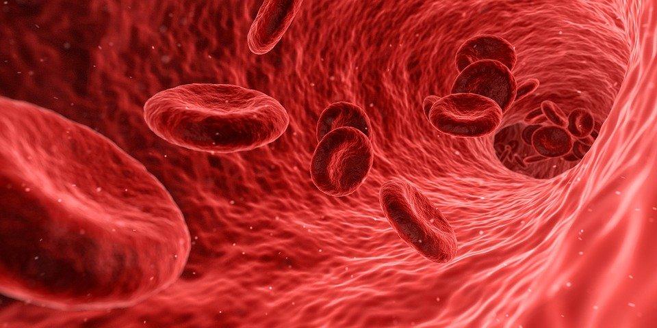Talasemia – przyczyny, objawy, leczenie