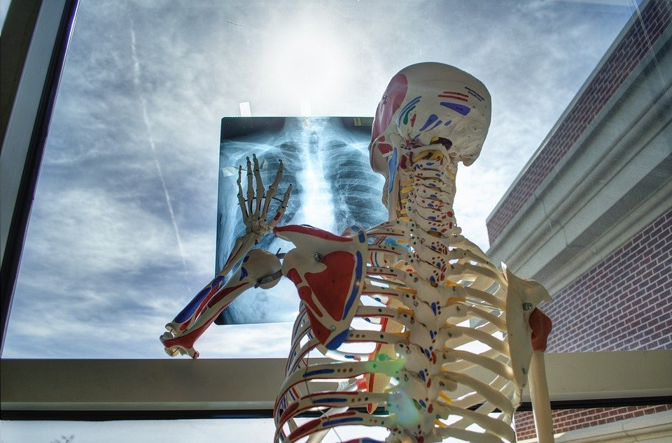 Osteoporoza prześwietlenie
