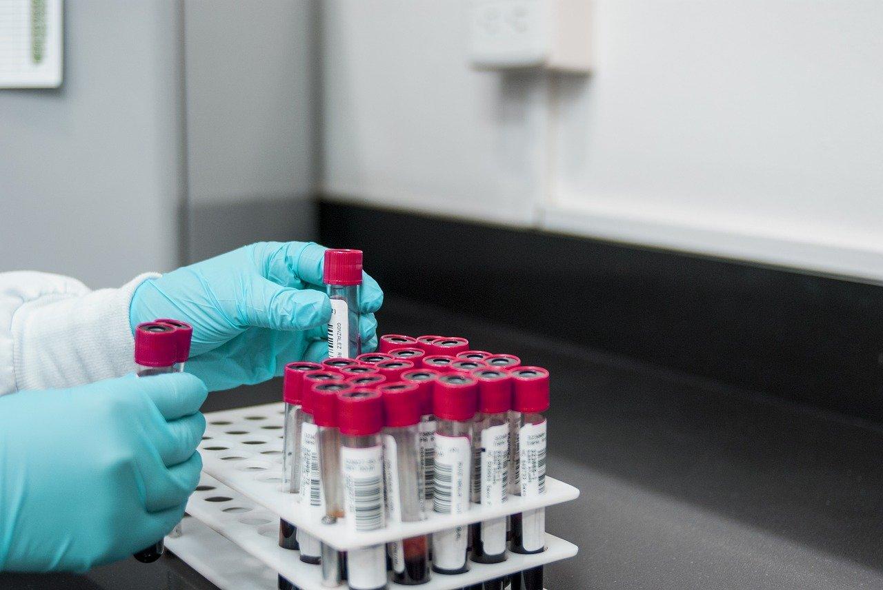 Badanie albuminy w laboratorium
