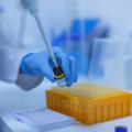 Czym jest aldosteron i jaką rolę pełni w organizmie?